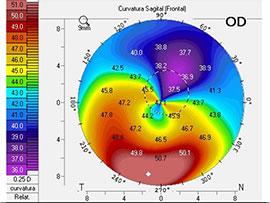 cornea-(2)