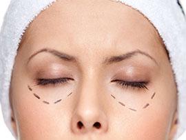oculoplastia-(2)