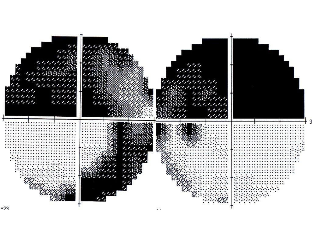 Campo de glaucoma que simula una hemianopsia