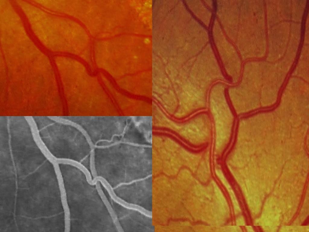"""La vénula toma forma de """"S"""" o """"U"""" y cruza la arteriola en ángulo recto (signo de Salus)."""