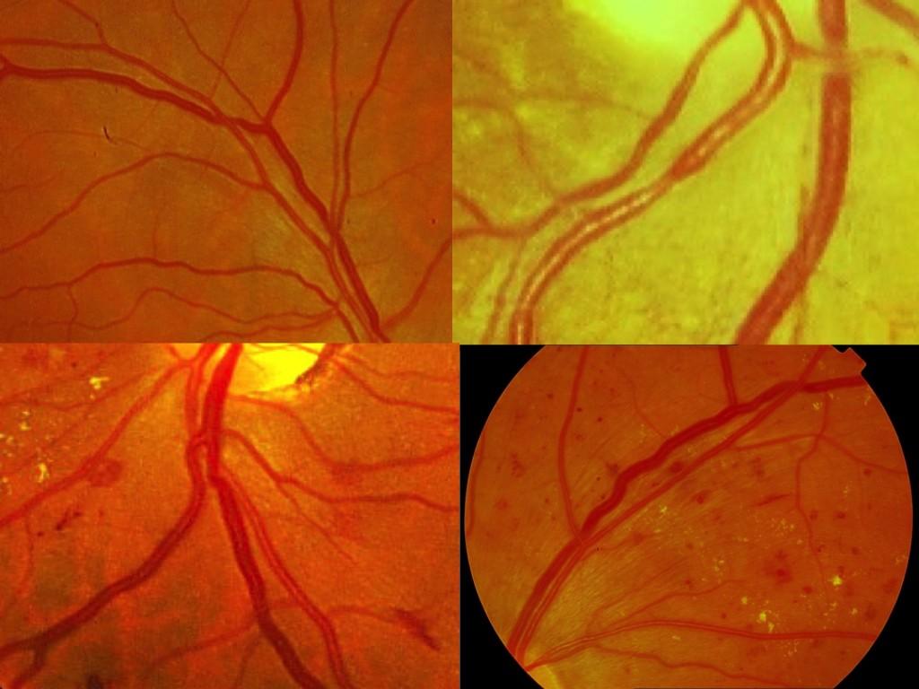 Las arteriolas pierden transparencia, se endurecen y presionan sobre las venas en los cruces