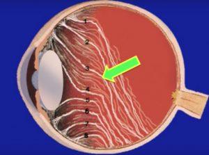 Enfermedades del Vítreo - Retina y Vítreo