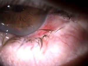 Triquiasis. Las pestañas rozan la conjuntiva y la córnea