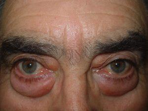 Dermatocalasia con grandes bolsas palpebrales