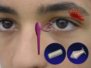 Representación de las vías lagrimales en el rostro de un joven. Tapones provisionales y definitivos