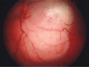 Aspecto del fondo de un ojo con retinoblastoma. (Cortesía del Dr. Fernando Arévalo)
