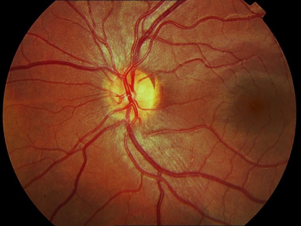 Fondo de ojo de un niño. La relación del calibre arteriolovenular es de 2:3 (vénula más ancha).