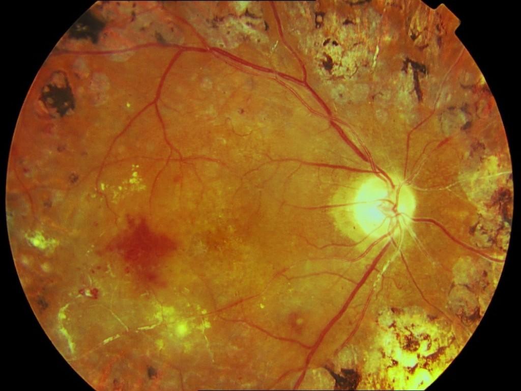 Arteriolas blanquecinas, envainadas y ocluidas en una RDP tratada con láser
