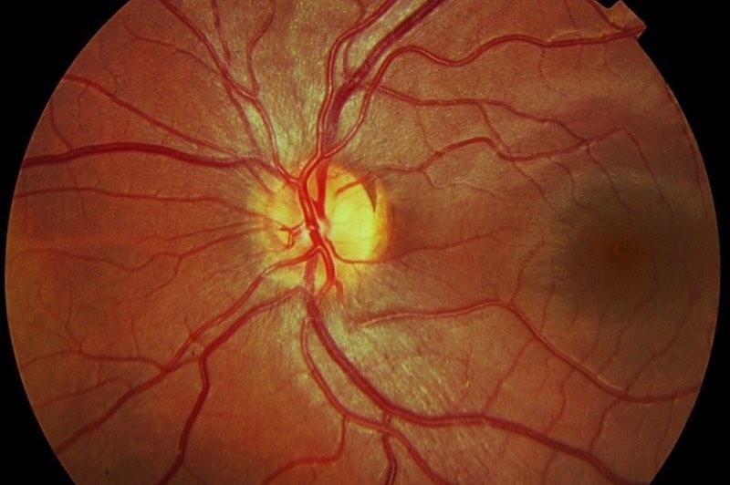 La Retinopatía esclerosa hipertensiva