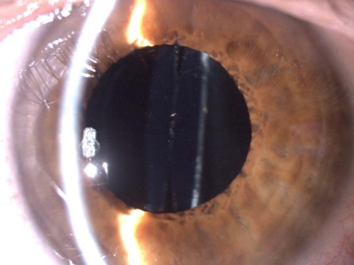 Cirugía del Cristalino Trasparente, Presbicia