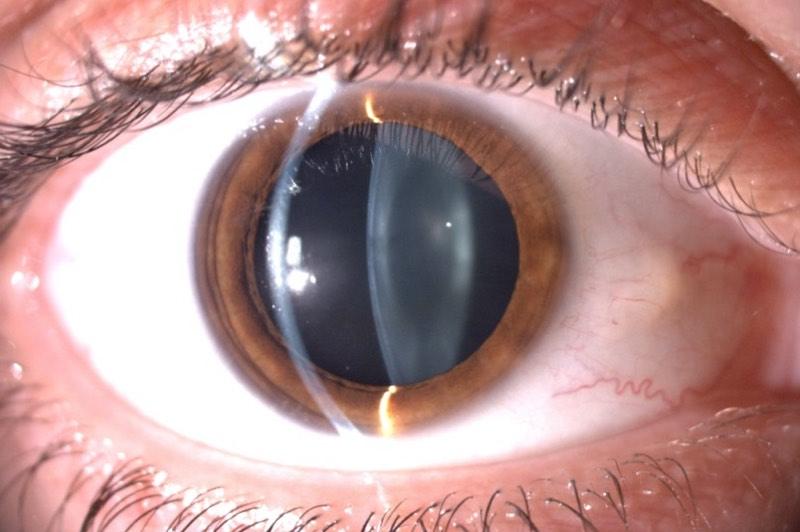 Corte biomicroscopico de la cornea