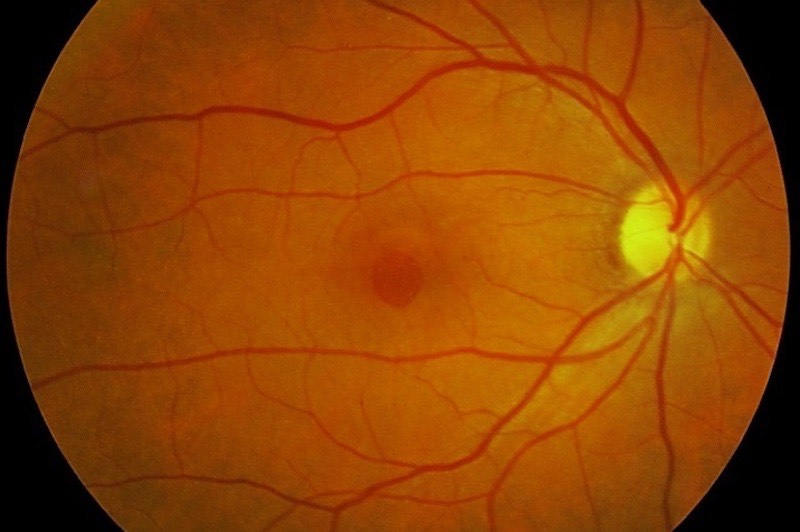 Agujero Macular, retina y vítreo por el Dr Bonafonte