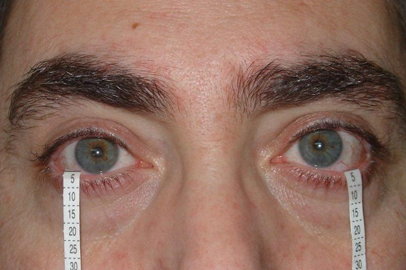 Aparato lagrimal - vías lagrimales