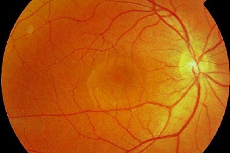 Coroiditis - Retina y Vítreo