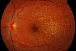 Degeneración macular DMAE