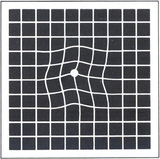 Metamorfopsias o distorsion de la imagen producida por la degeneración macular