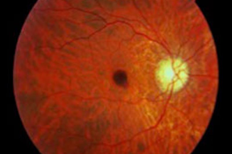 Miopía Magma o degenerativa en personas adultas