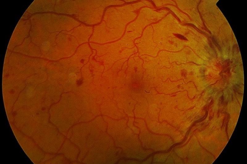 Trastornos Circulatorios - Oclusiones Vasculares de la Retina